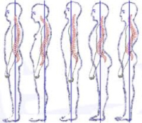 spine examples